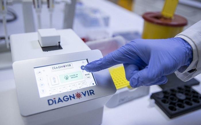 Türkiyədə koronavirusu 10 saniyəyə təyin edən cihaz hazırlanıb